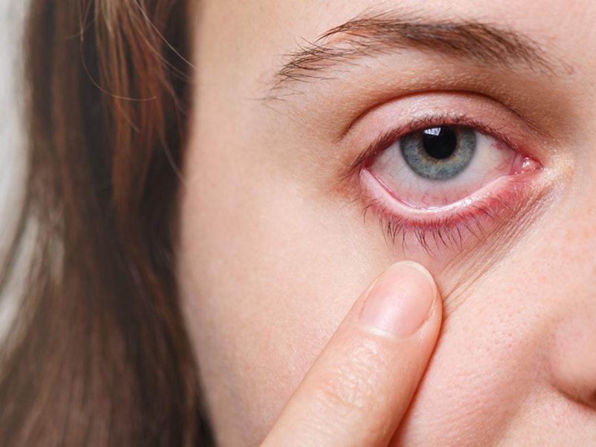 trauma-ocular-pode-levar-a-cegueira